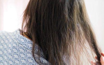 [ALOPECIE] Comprendre l'alopécie androgénétique hormonale